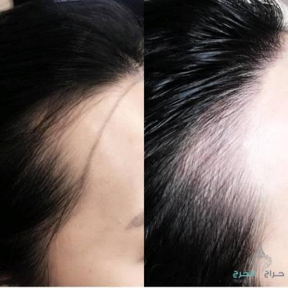 منتج الافغاني للتساقط الشعر وانبات فراغات