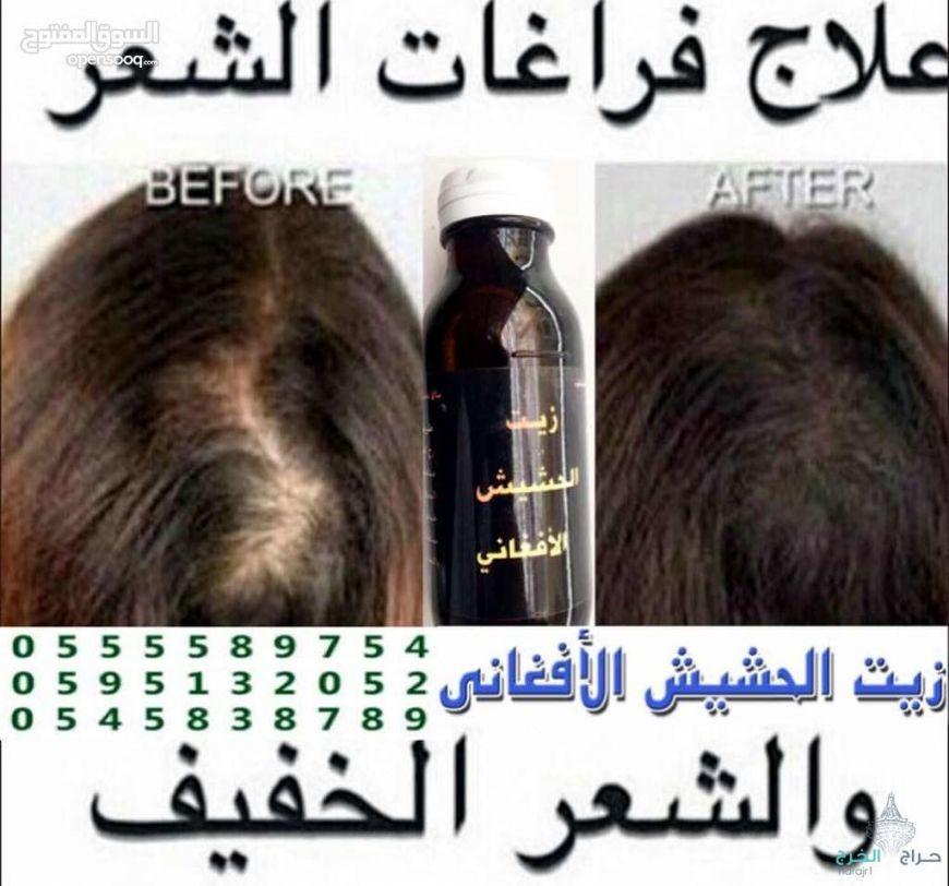 زيت الحشيش الأفغاني الاصلي 100%لجميع مشاكل الشعر ايقاف تساقط وانبات فراغات واطالة الشغر
