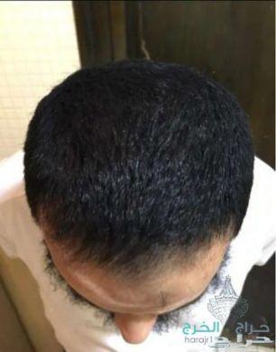 زيت الحشيش الأفغاني الاصلي 100%للتساقط وانبات فراغات وطالة الشعر منتج مضمون ومجرب