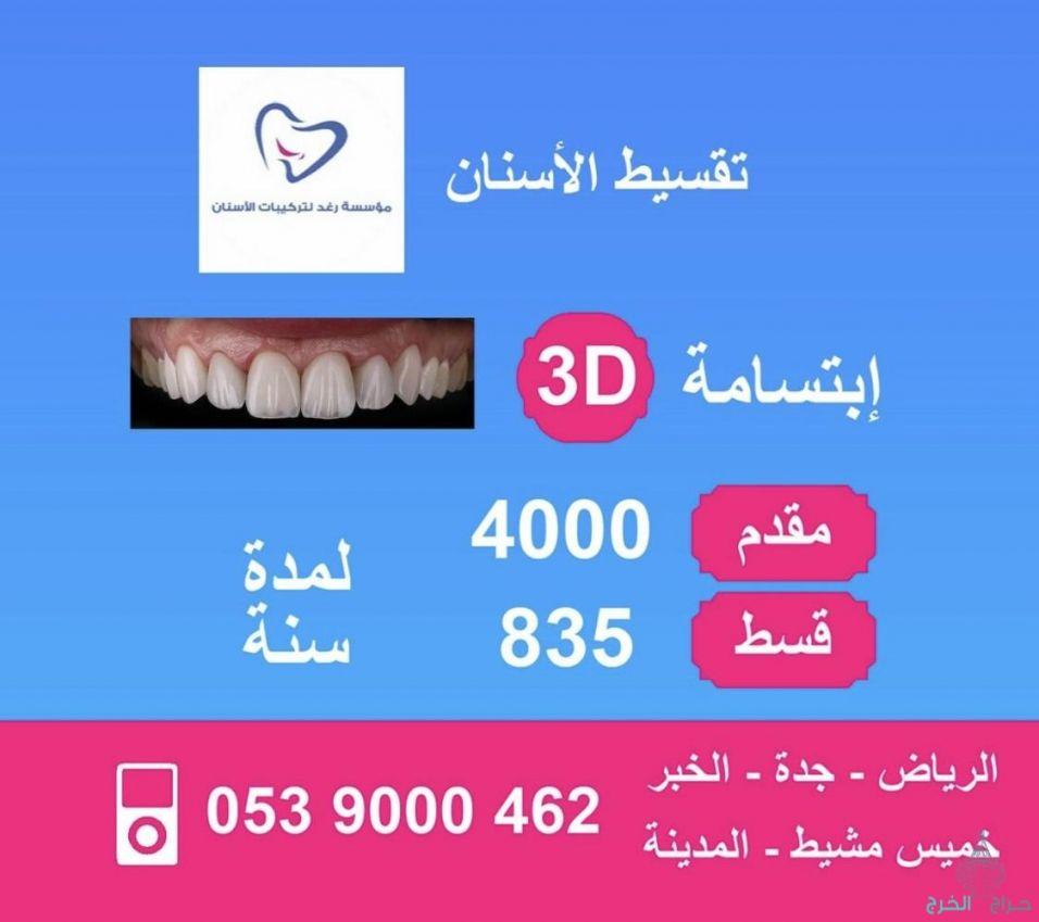 أسنانك وعلاجك بالتقسيط